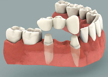 Affordable Dental Bridges