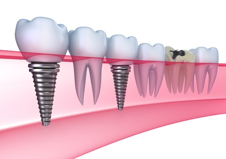Affordable Dental Crowns